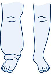 Lymphoedema Leg Hosiery